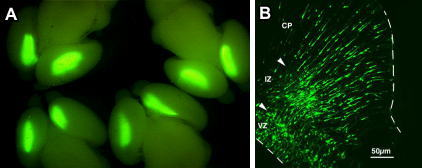 GFP Expression